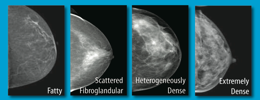 Breast Density Classifications